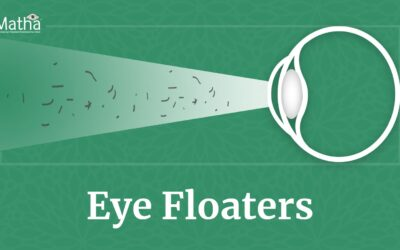 Ayurvedic Treatment for Eye Floaters